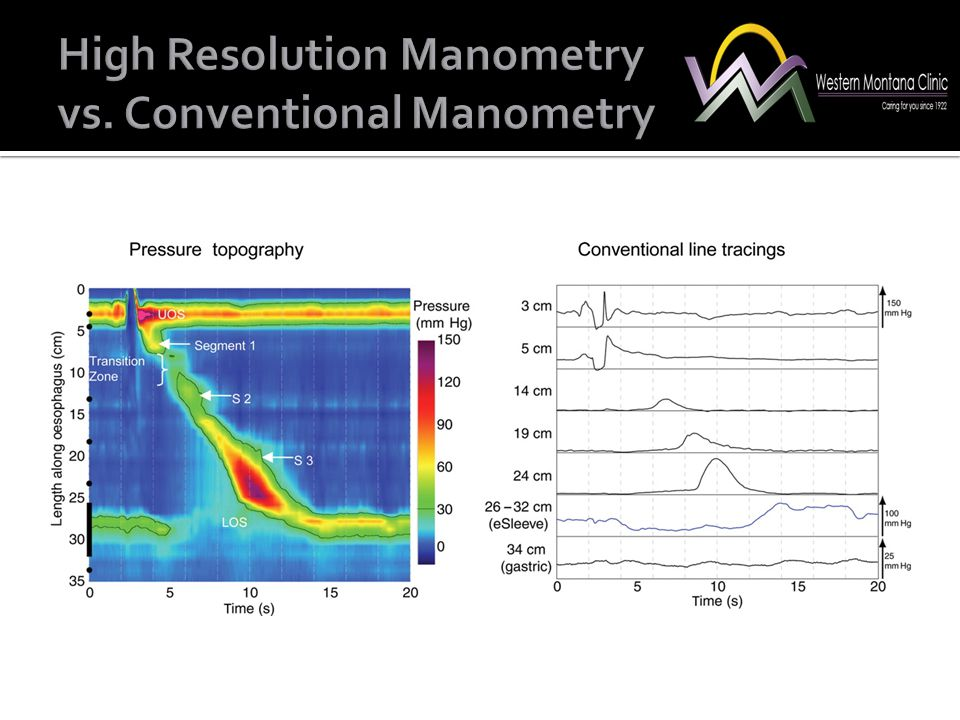 High Resolution Manometry vs. Conventional Manometry