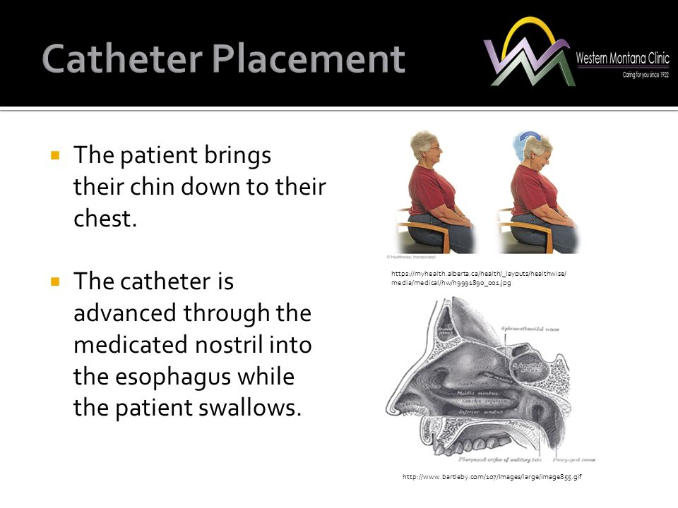Catheter Placement The patient brings their chin down to their chest.