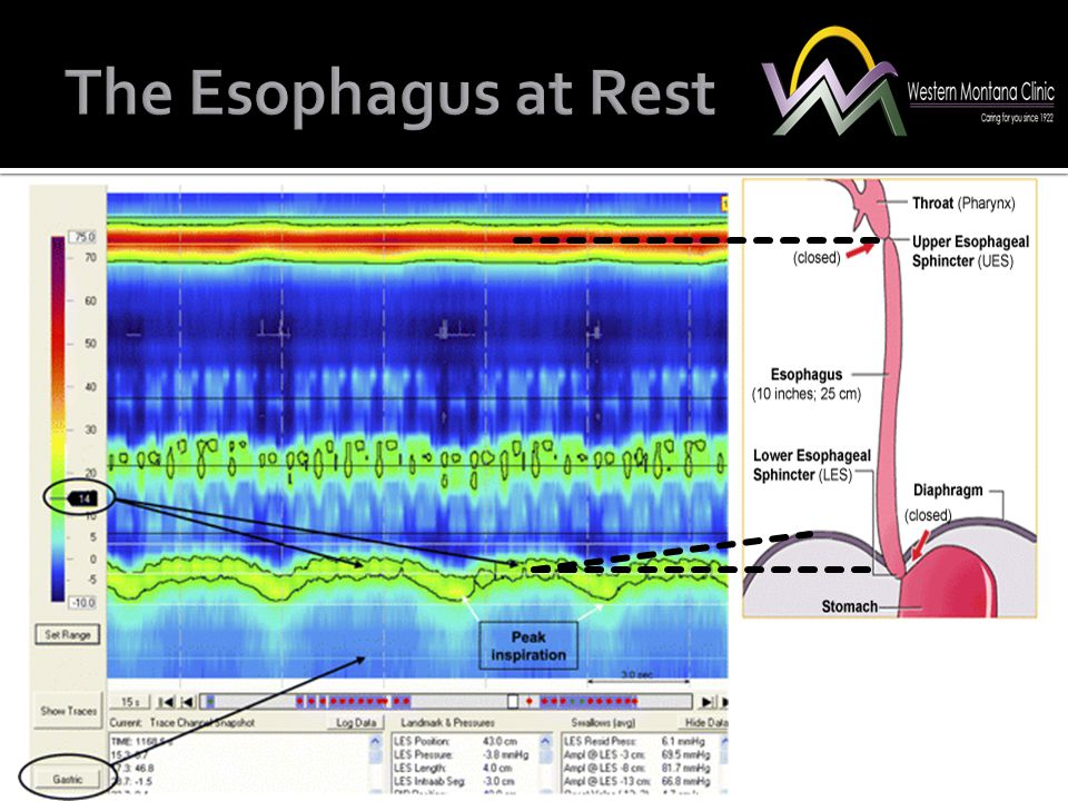 The Esophagus at Rest