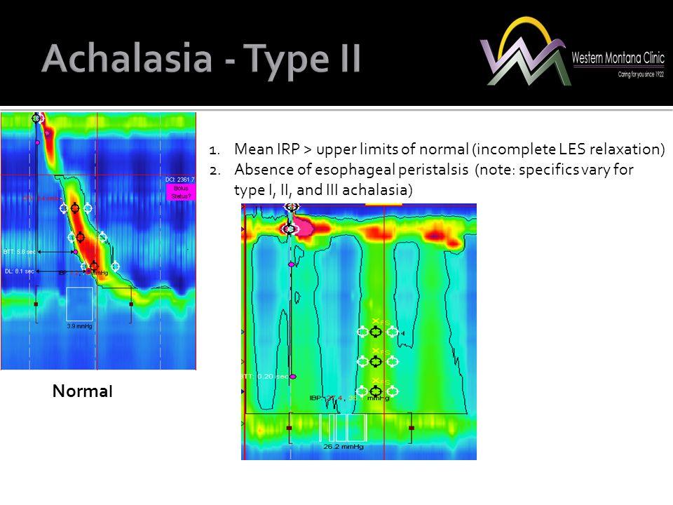 Achalasia - Type II Normal