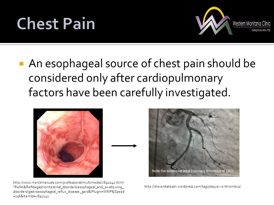 Chest Pain An esophageal source of chest pain should be considered only after cardiopulmonary factors have been carefully investigated.