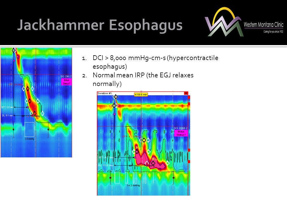 Jackhammer Esophagus DCI > 8,000 mmHg-cm-s (hypercontractile esophagus) Normal mean IRP (the EGJ relaxes normally)