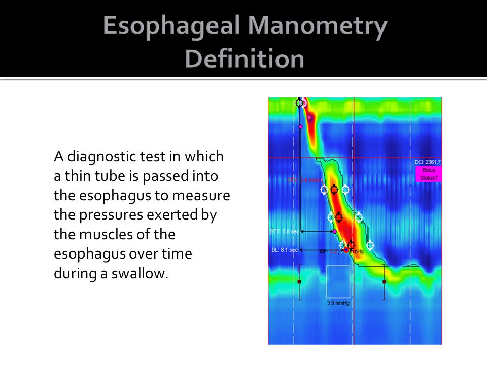 Esophageal Manometry Definition