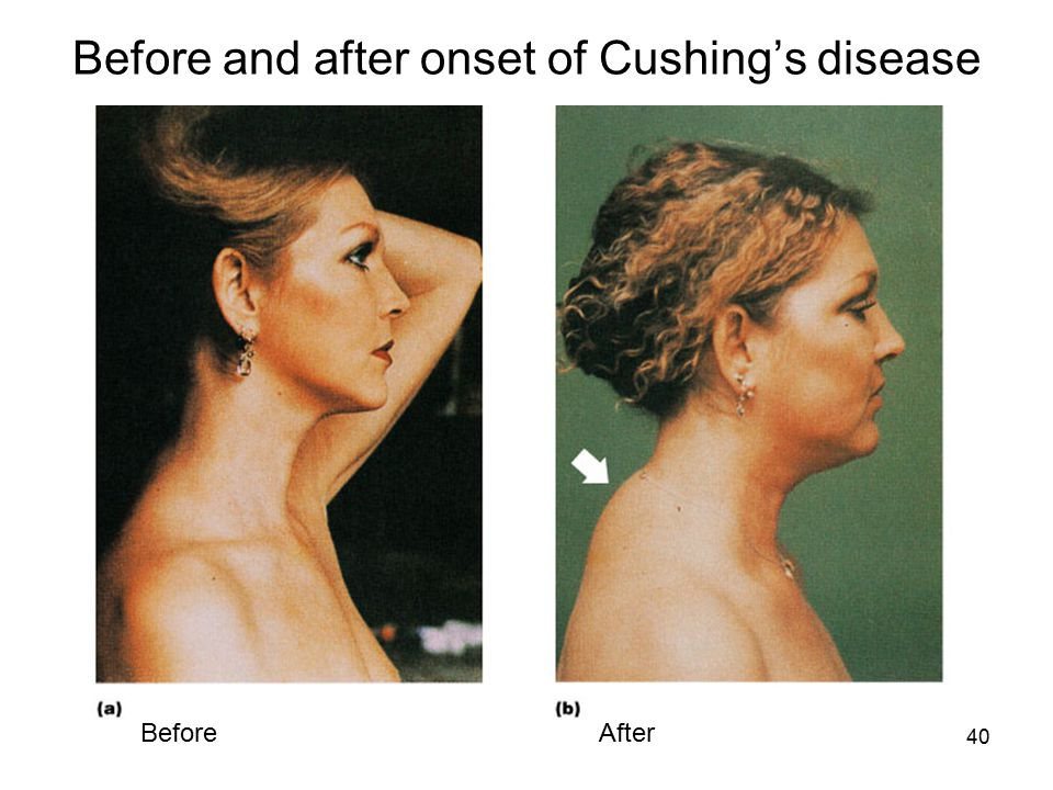 Before and after onset of Cushing's disease