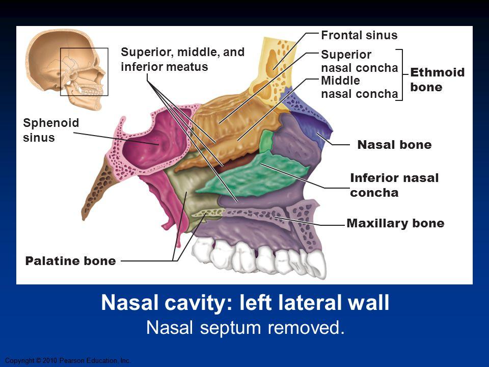 Nasal cavity: left lateral wall Nasal septum removed.
