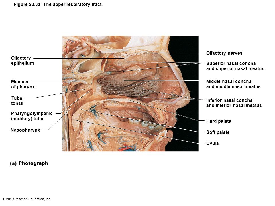 Figure 22.3a The upper respiratory tract.