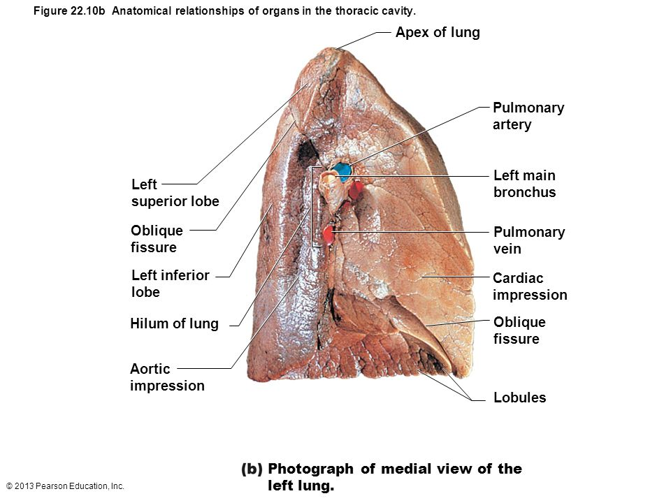 Photograph of medial view of the left lung.