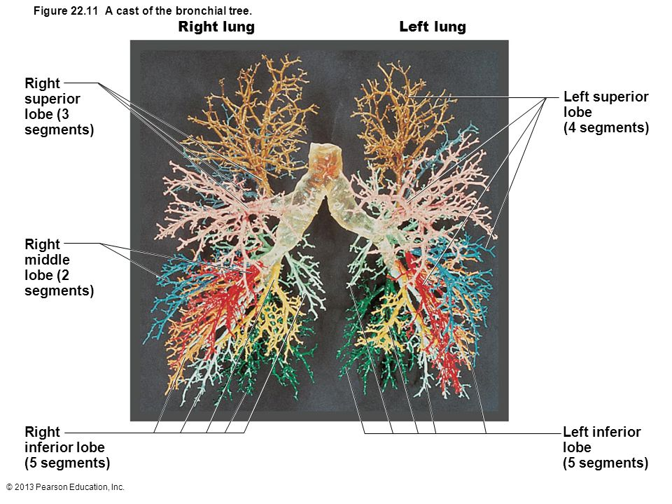 Figure 22.11 A cast of the bronchial tree.