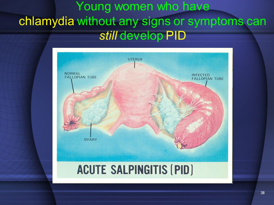 Young women who have chlamydia without any signs or symptoms can still develop PID