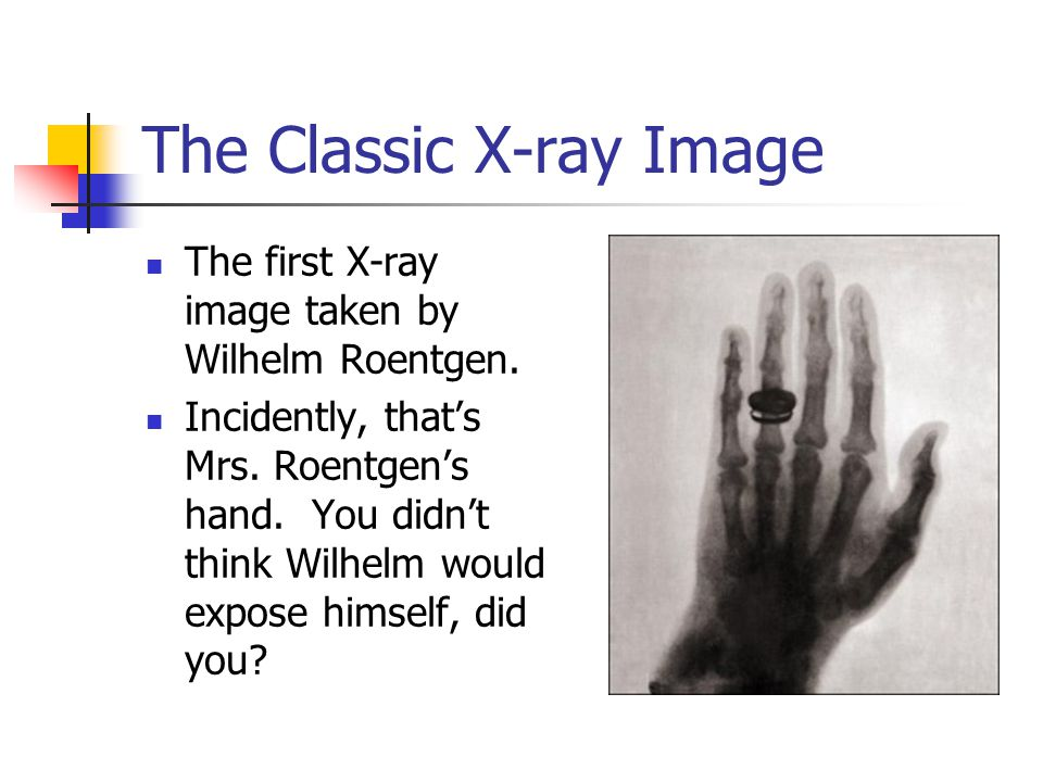 The Classic X-ray Image