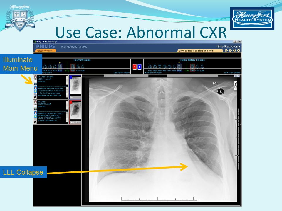 Use Case: Abnormal CXR Illuminate Main Menu LLL Collapse