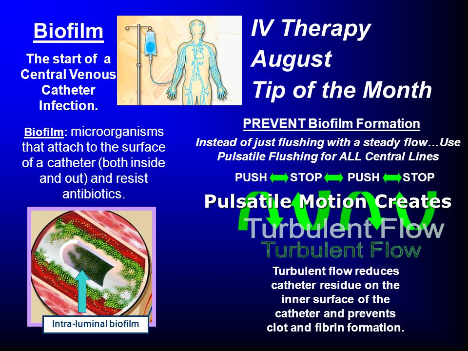 IV Therapy August Tip of the Month