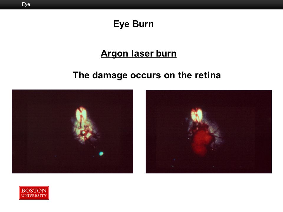 The damage occurs on the retina