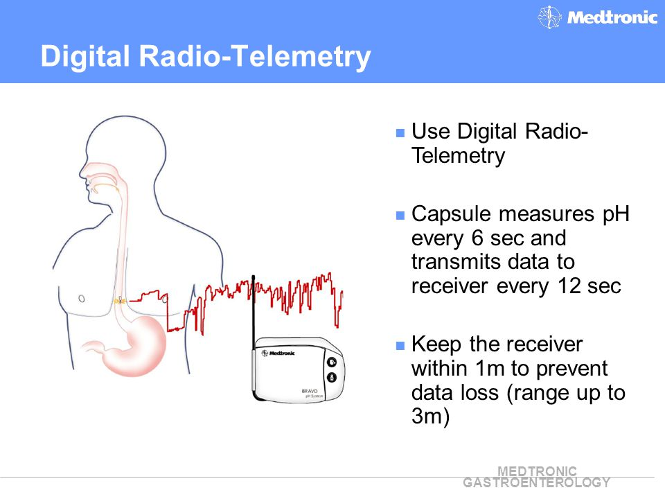 Digital Radio-Telemetry