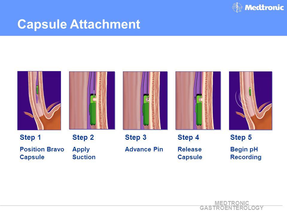 Capsule Attachment Step 1 Step 2 Step 3 Step 4 Step 5