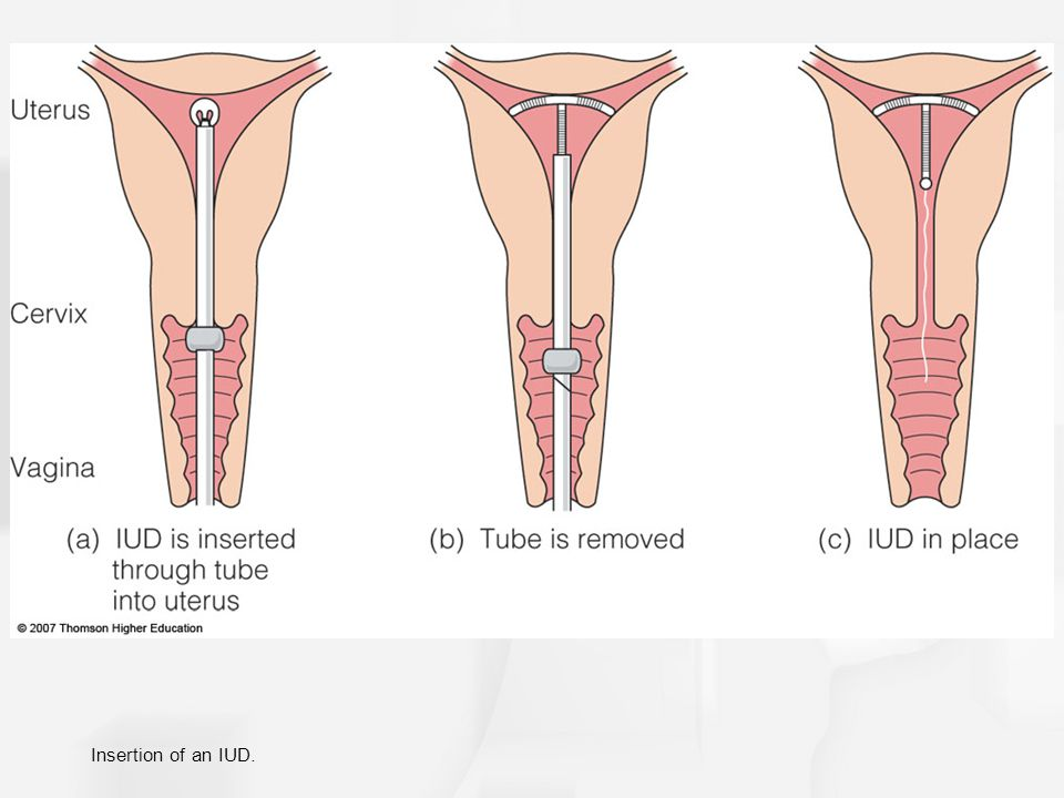 Insertion of an IUD.