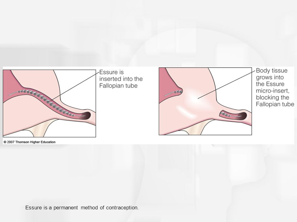 Essure is a permanent method of contraception.