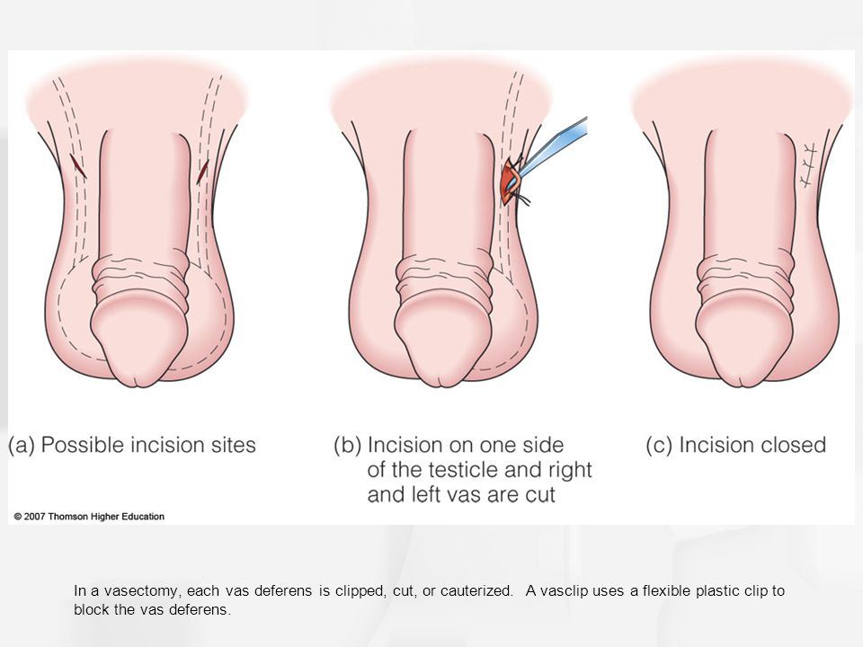 In a vasectomy, each vas deferens is clipped, cut, or cauterized