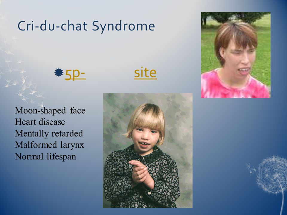 5p- site Cri-du-chat Syndrome Moon-shaped face Heart disease