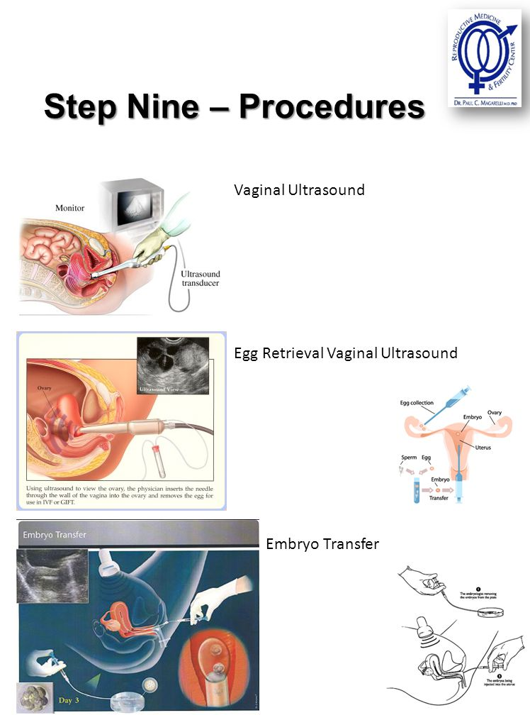Step Nine – Procedures Vaginal Ultrasound