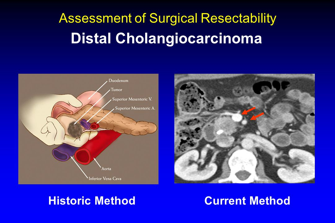Assessment of Surgical Resectability