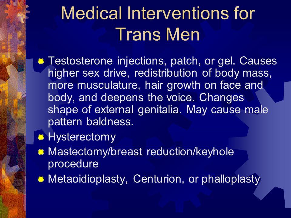 Medical Interventions for Trans Men