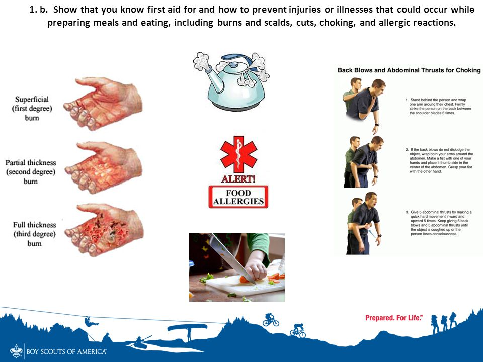 1. b. Show that you know first aid for and how to prevent injuries or illnesses that could occur while preparing meals and eating, including burns and scalds, cuts, choking, and allergic reactions.