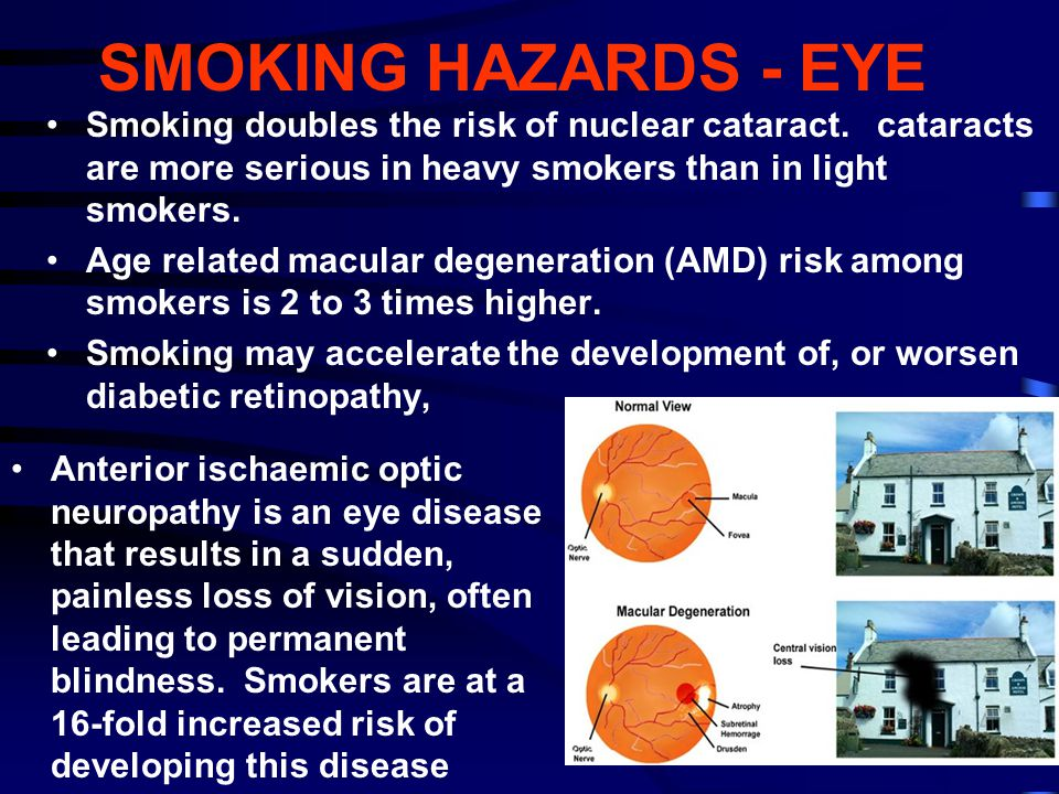 SMOKING HAZARDS - EYE Smoking doubles the risk of nuclear cataract. cataracts are more serious in heavy smokers than in light smokers.