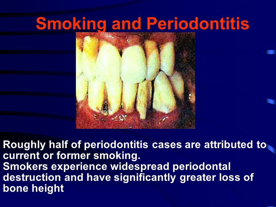 Smoking and Periodontitis
