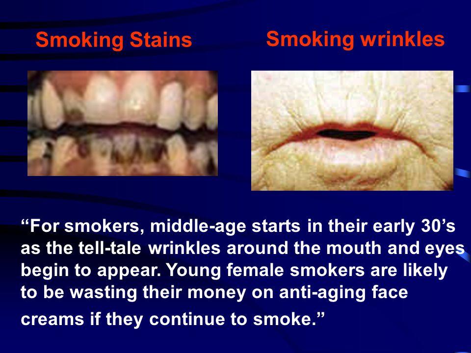 Smoking Stains Smoking wrinkles