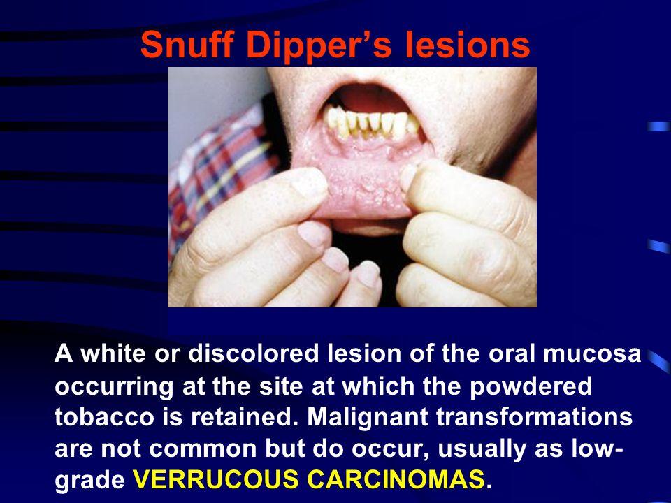Snuff Dipper's lesions