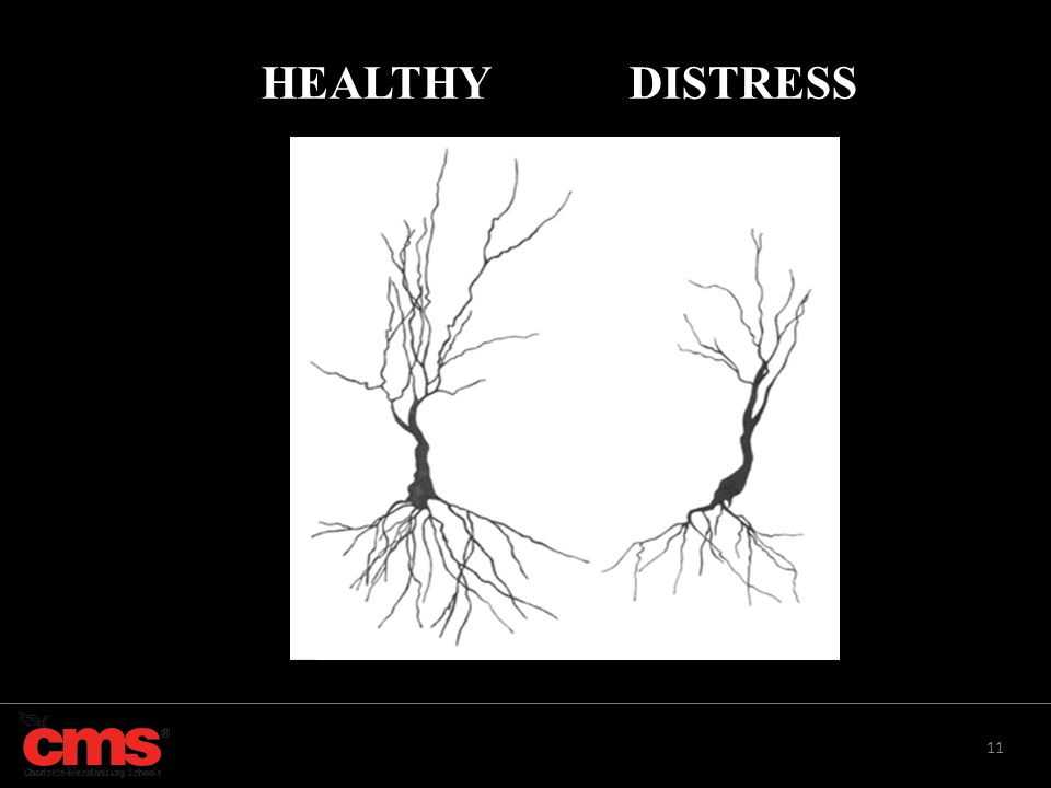 HEALTHY DISTRESS 1. 20% of all students 9-17 have chronic stress.