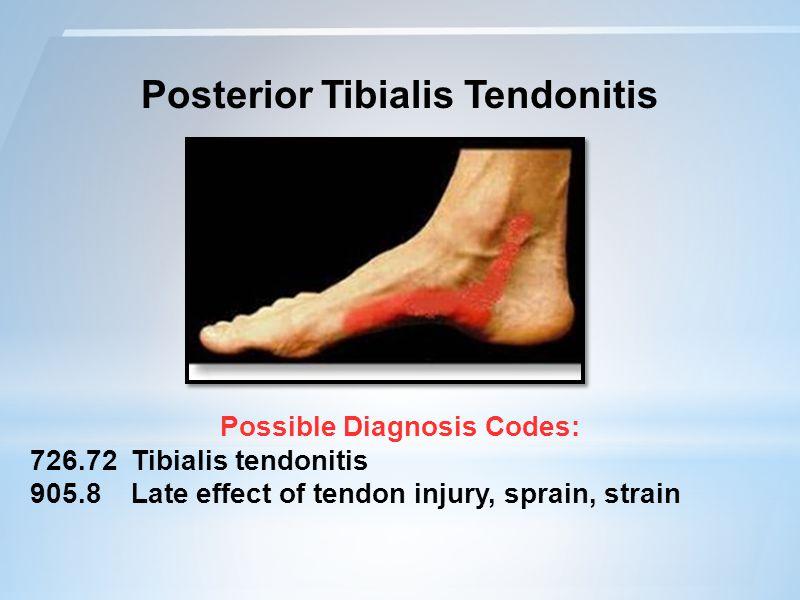 Posterior Tibialis Tendonitis Possible Diagnosis Codes: