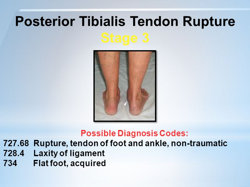 Posterior Tibialis Tendon Rupture Possible Diagnosis Codes:
