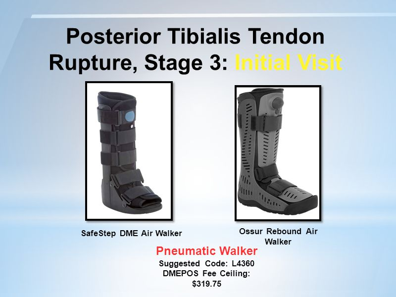Posterior Tibialis Tendon Rupture, Stage 3: Initial Visit