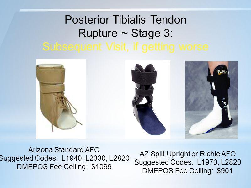 Posterior Tibialis Tendon Rupture ~ Stage 3: