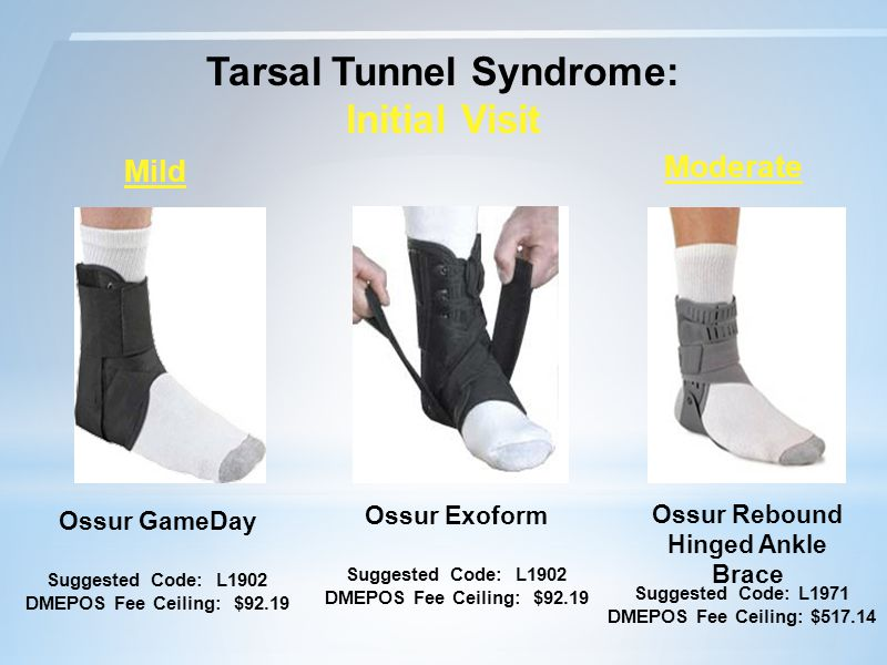 Tarsal Tunnel Syndrome: