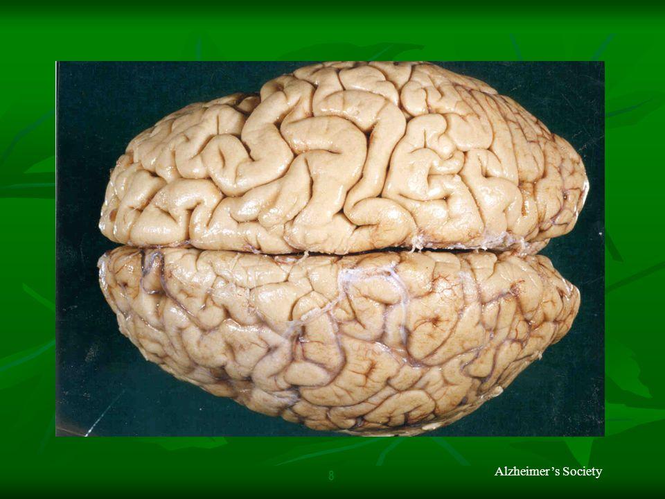 Alzheimer's Society 8