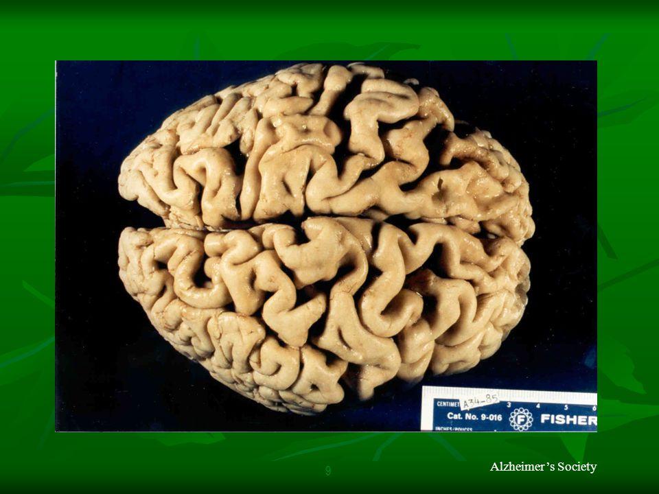 Alzheimer's Society 9