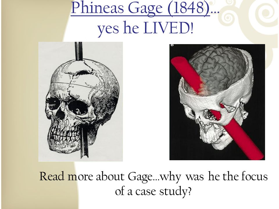 Phineas Gage (1848)… yes he LIVED!