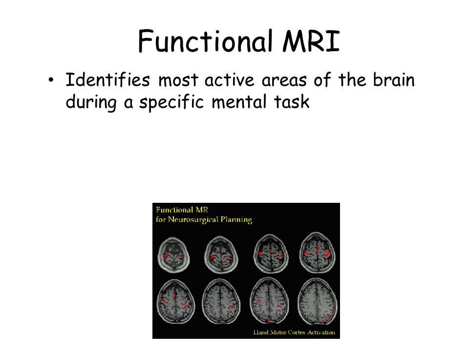 Functional MRI Identifies most active areas of the brain during a specific mental task.