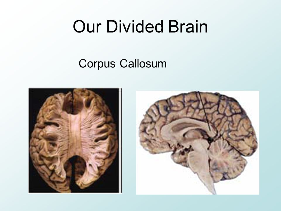 Our Divided Brain Corpus Callosum