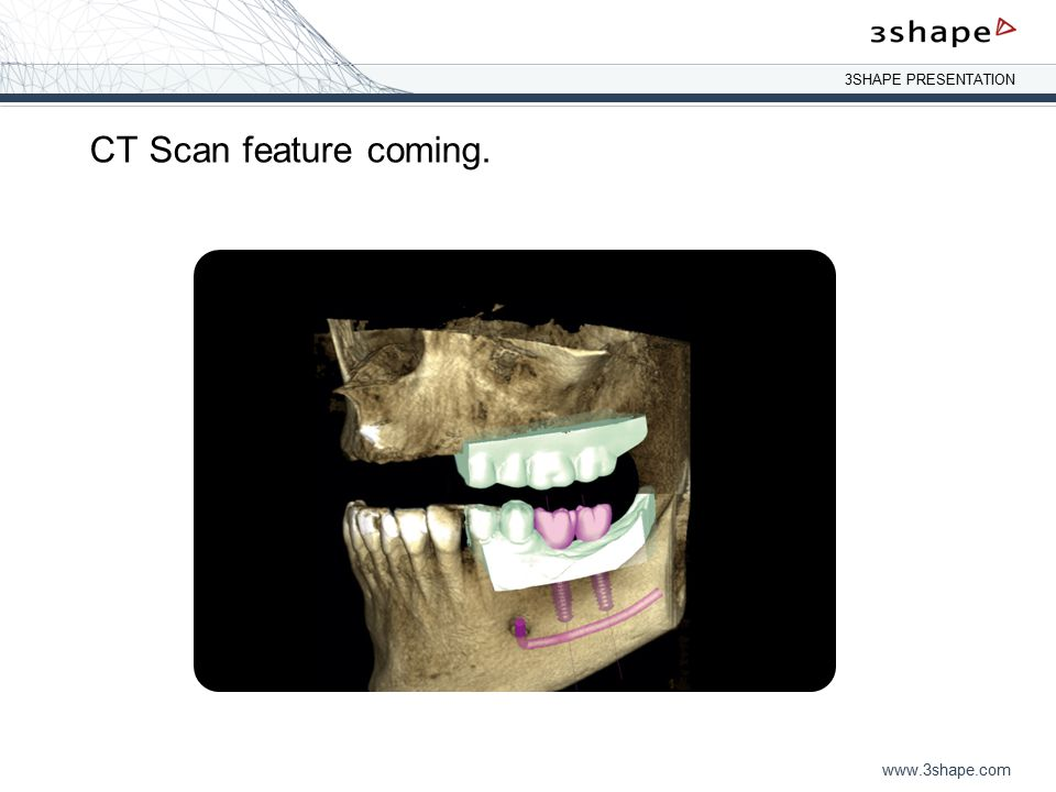 CT Scan feature coming.