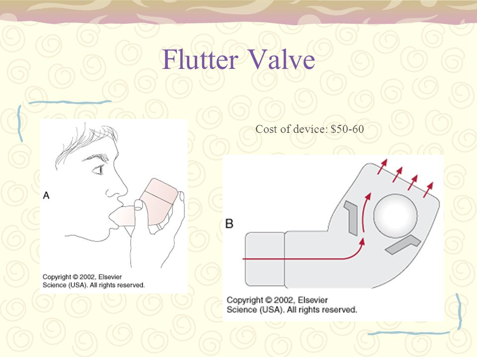 Flutter Valve Cost of device: $50-60