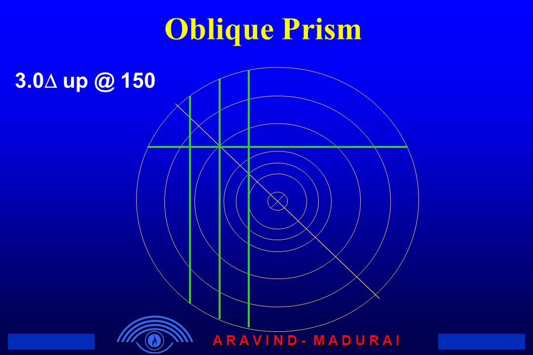 Oblique Prism Determination of Oblique Prism With the Focimeter. Vertical & Horizontal Prism.