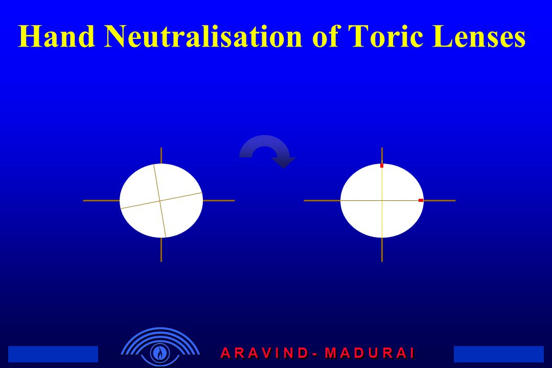 Hand Neutralisation of Toric Lenses