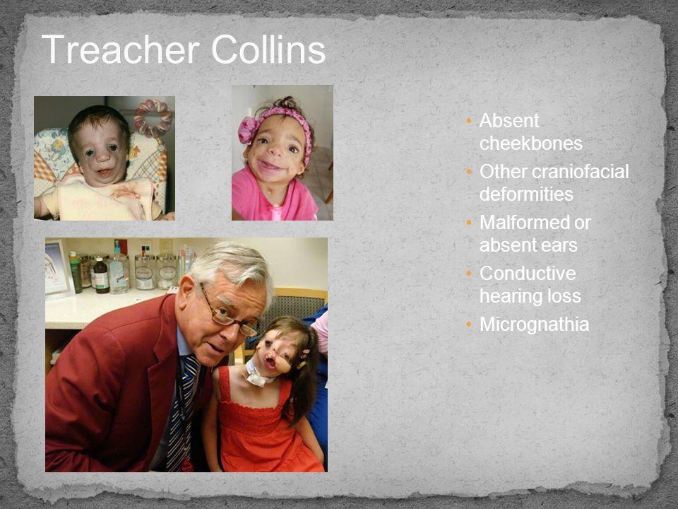 Treacher Collins Absent cheekbones Other craniofacial deformities