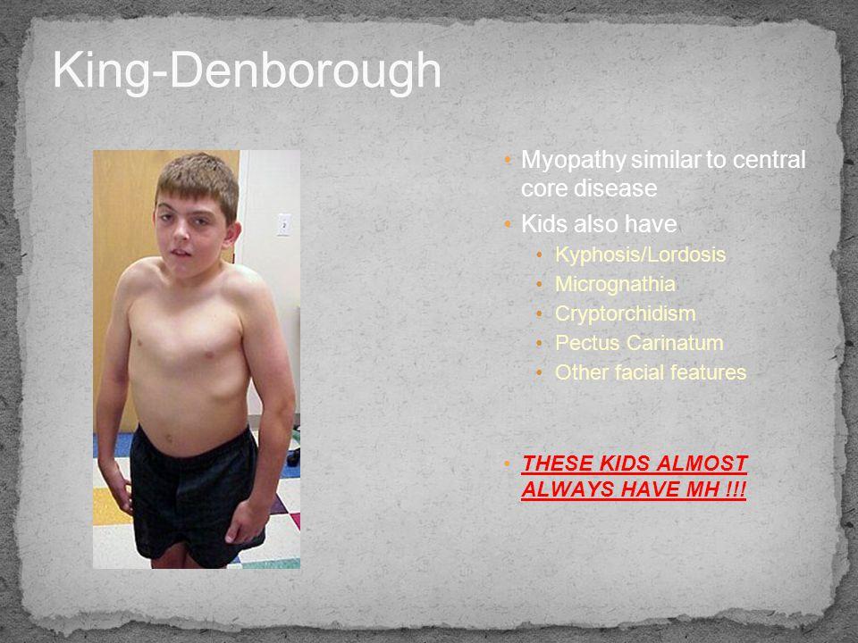 King-Denborough Myopathy similar to central core disease