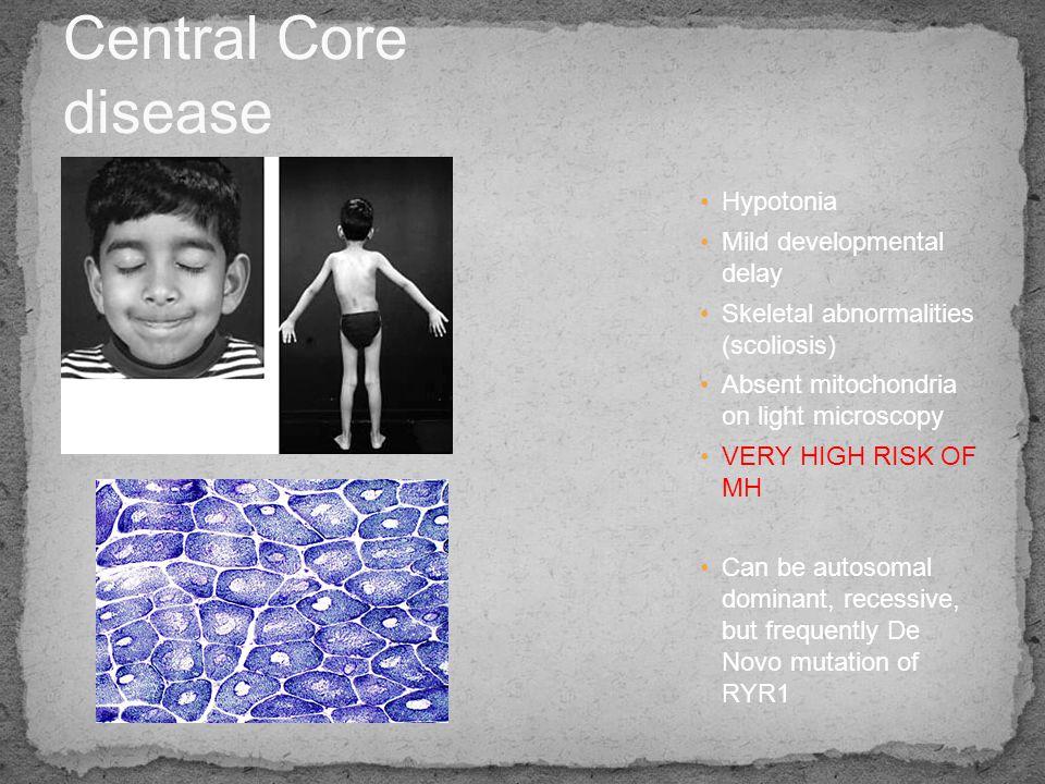 Central Core disease Hypotonia Mild developmental delay
