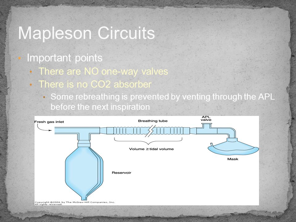 Mapleson Circuits Important points There are NO one-way valves